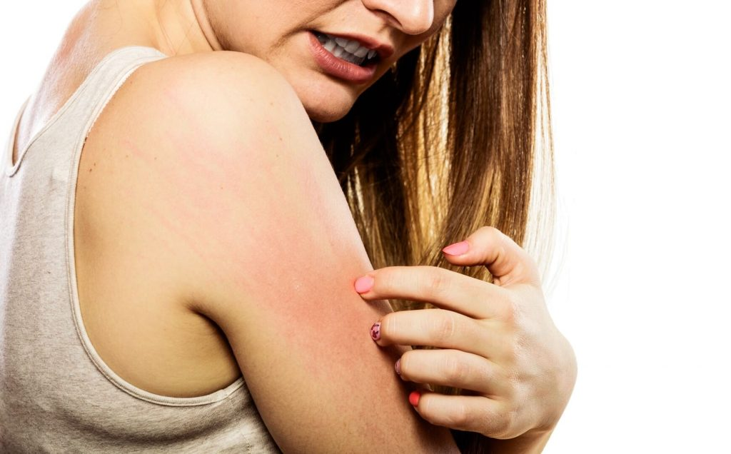 woman scratching itchy arm