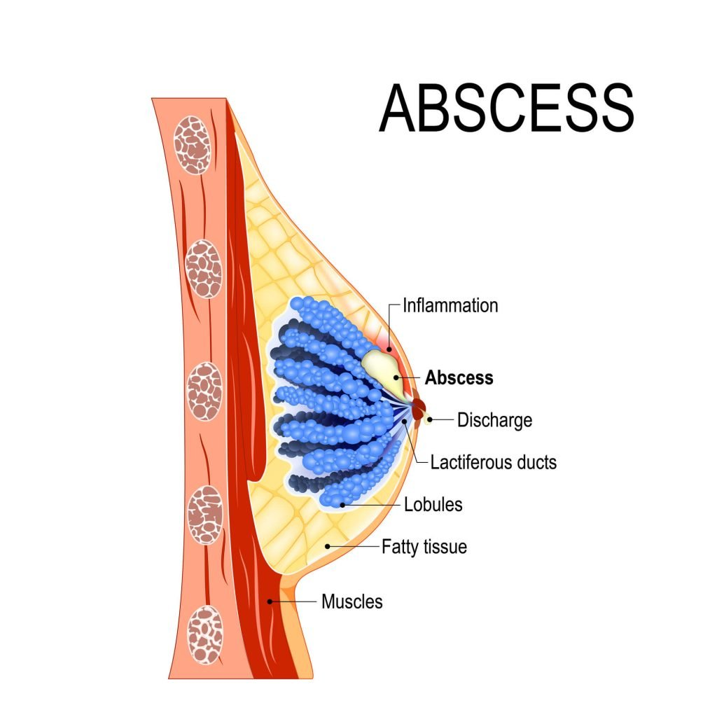 drawing of anatomy of breast with abscess from breastfeeding